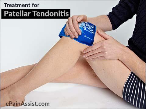 treatment-for-patellar-tendonitis.jpg